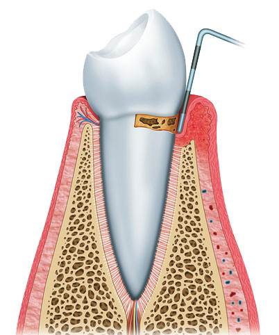the start of periodontal diease