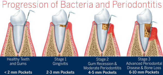 periodontal-surgery