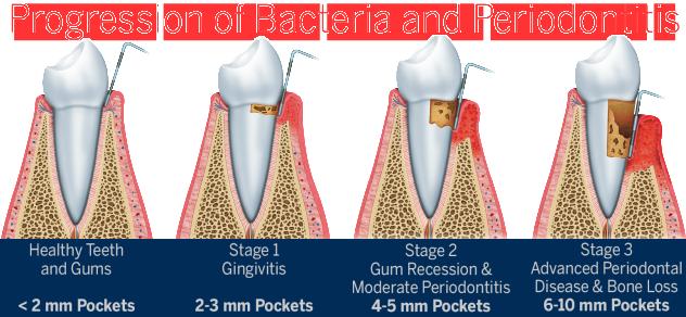 periodontal-surgery