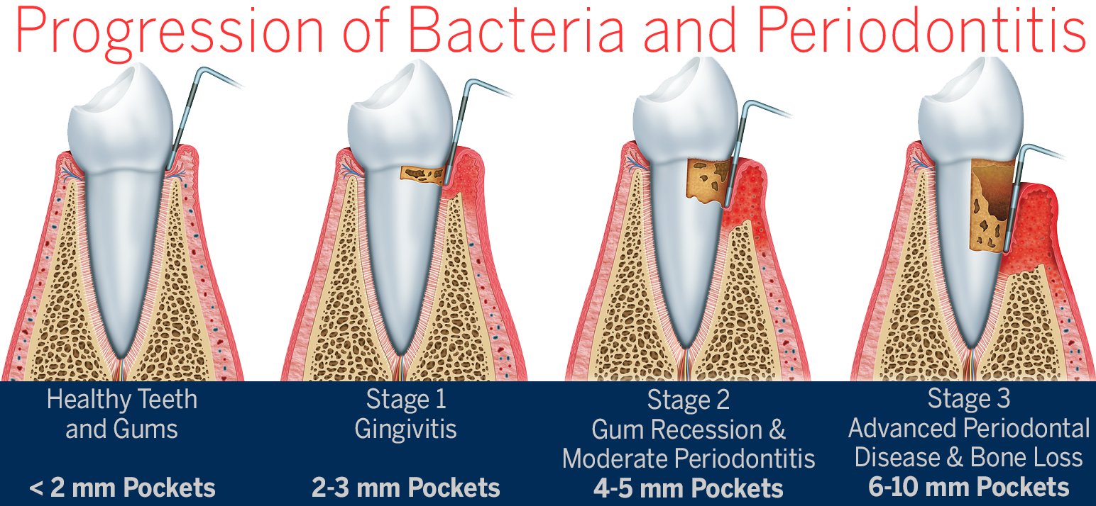 What Is Periodontal Disease Pristine Periodontics And