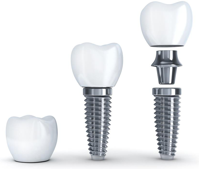 What Are Dental Implants Pristine Periodontics And Implants