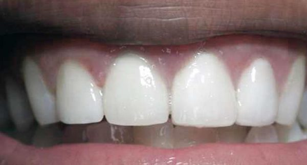 Dental Implant with Bridge After