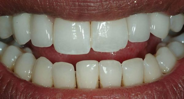 Gum disease and implant treatment - after