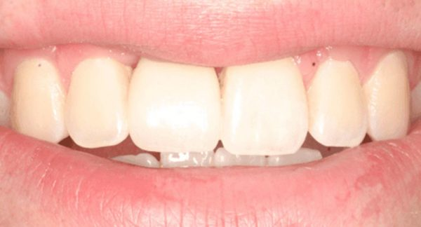 After bone grafting
