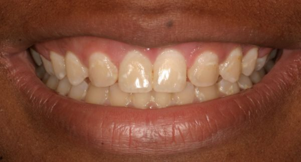 Crown Lengthening After