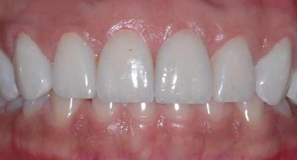 After Crown Lengthening