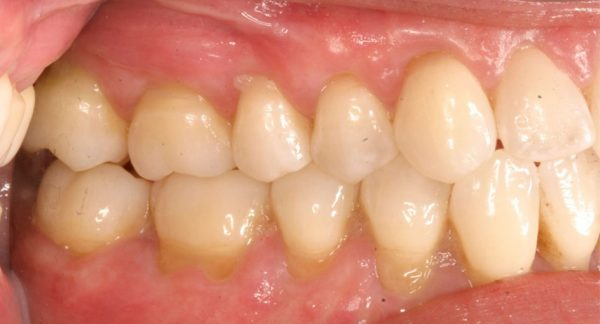 Gum Recession Treatment After
