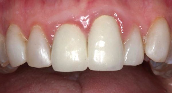 Gum Recession Treatment Before